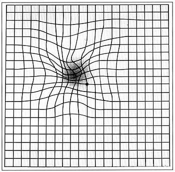 Amsler grid as it might appear to someone with age-related macular degeneration. (Photo credit: Wikipedia)