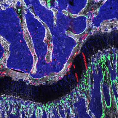 The osteochondroretricular (OCR) stem cell, a newly identified type of bone stem cell that appears to be vital to skeletal development and may provide the basis for novel treatments for osteoarthritis, osteoporosis, and bone fractures. In this illustration of the head of a femur (the thigh bone), OCR stem cells are visualized in red. (Credit: Laboratory of Dr. Timothy Wang)
