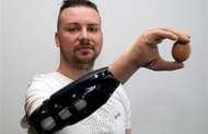 Scientists report bionic hand reconstruction in three Austrian men