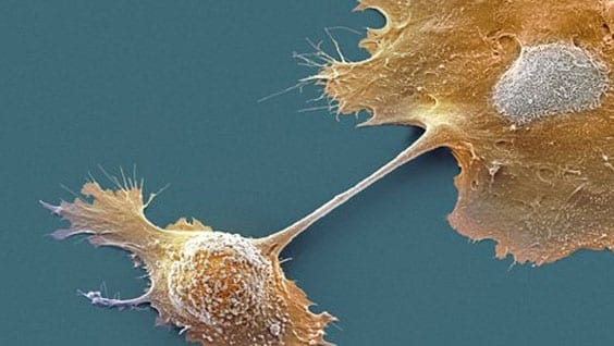 Scanning electron micrograph of pancreatic cells