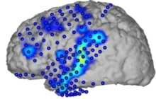 Speech recognition from brain activity