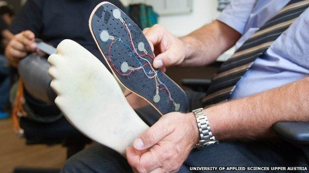 Artificial Limbs Rewired to Nerve Endings Restore Patient Sensations