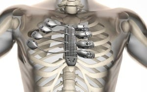 Cancer patient receives 3D printed ribs in world-first surgery