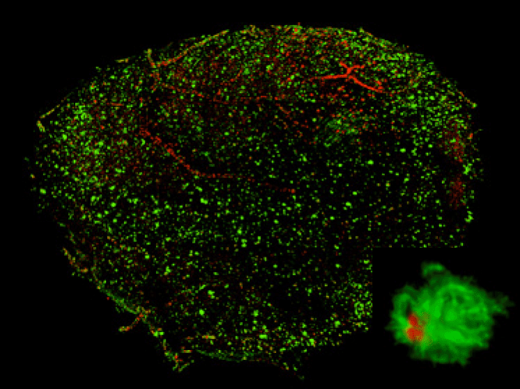 3D visualization of A? plaques in entire hemispheres of an AD model mouse, stained with PP-BTA-1 (red) and Alexa488-6E10 (green). 18 months of age. Inset, a high-magnification volume rendering of a representative senile plaque.