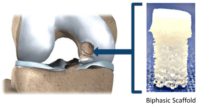 Biphasic silk and ceramic scaffold is designed to mimic properties of cartilage and bone for grafting into damaged joint. Source: Springer Science