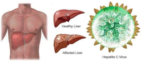 via www.healthmango.com