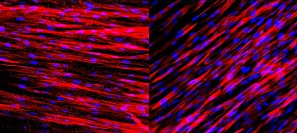 Staining on these slides shows that engineered human arteries produce contractile proteins (left) and calponin (right) just one week after being grown in culture. These two molecules allow the arteries to contract and dilate in response to environmental stimuli.