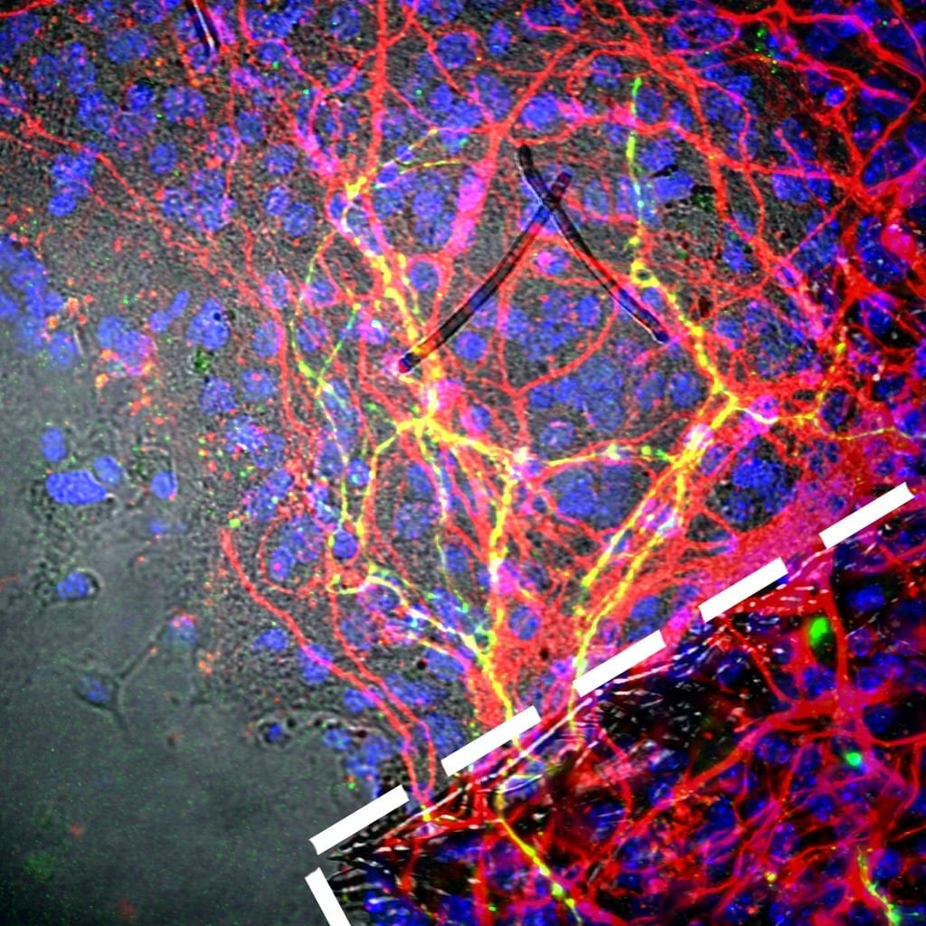 Future Brain Therapies for Parkinson's Possible with Stem Cell Bioengineering Innovation