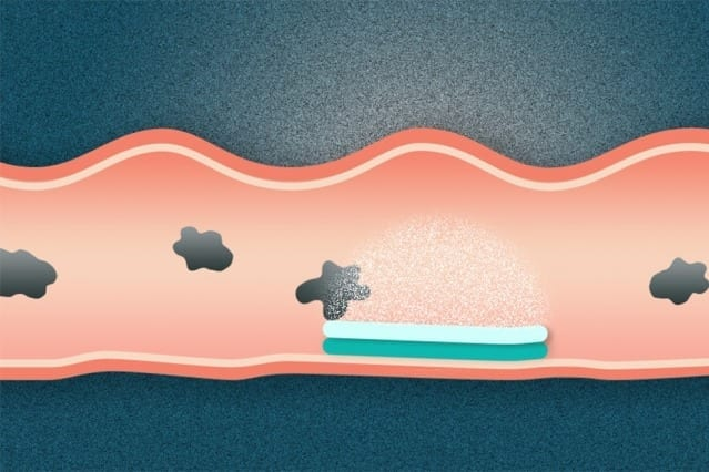 Researchers have created a new type of dual-sided pill that attaches to the gastrointestinal tract. One side of the pill sticks to mucosal surfaces, while the other is omniphobic, meaning that it repels everything it encounters. Illustration: Christine Daniloff/MIT