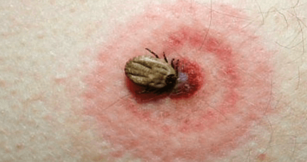 Early-detection urine test for Lyme disease works