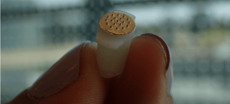 Researchers at UBC and the Paul Scherrer Institut (PSI) in Switzerland have created a microneedle drug monitoring system that could one day replace costly, invasive blood draws and improve patient comfort.