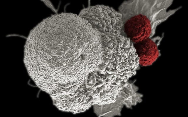 False-colored scanning electron micrograph depicts oral squamous cancer cell (white) being attacked by to T cells (red), part of the natural immune response. Image courtesy of National Cancer Institute.