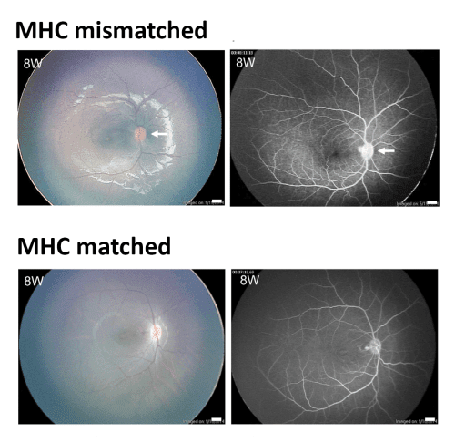 Allogeneic Transplantation of MHC Homozygote iPS-RPE Cells into Subretinal Space of Control and MHC-Matched Monkeys Transplantation of monkey iPS-RPE cells into the subretinal space in a control monkey (MHC mismatched) was performed without immunosuppression. Disc redness in a fundus photograph (upper left) and slight leakage from the disc in fluorescein angiography (FA, upper right) were observed at the 8-week (8W) evaluation. (B) Transplantation of monkey iPS-RPE cells into the subretinal space in an MHC-matched monkey. At 8 weeks (8W) after surgery, the results of color fundus photographs (upper left) and FA (upper right) revealed no inflammation. Throughout the 6-month observation period, there were no rejection signs in the subretinal space or the retina. Scale bars in color fundus and FA, 1.0 mm.