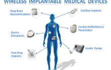 A multi-function chip to enable next generation implantable device innovations