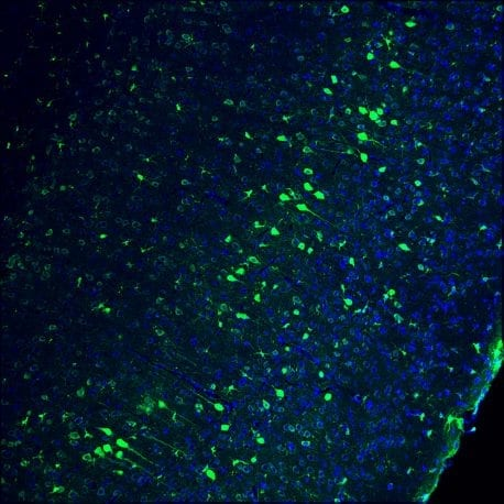 Pictured is a part of the adult mouse brain. Cell nuclei are blue and genome-edited neurons are green. Click here for a high-resolution image Credit: Salk Institute
