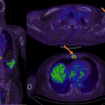 First-in-human application of a new imaging agent to help find prostate cancer in both early and advanced stages