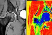 Precision medicine accelerates using real-time MRI analysis