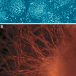 Lasers Stimulate Stem Cells and Reduce Heart Scarring After Heart Attack