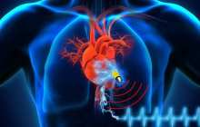 Biosupercapacitor powered medical devices now on the horizon