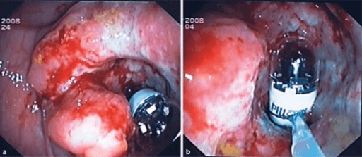 A 18-mm magnetized capsule colonoscope changes the colonoscopy forever