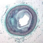 Nanoparticles Plus Adult Stem Cells Demolish Plaque in Arteries