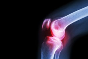 Knee arthritis pain can disappear with non-invasive cooled radio energy