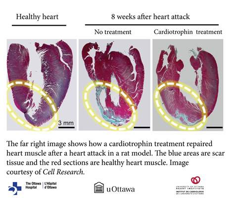 Cardiotrophin 1 can repair heart damage and improve blood flow in animal models of left and right heart failure