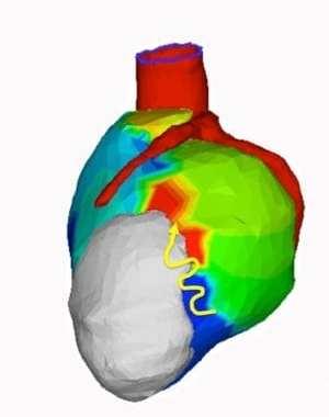 Can Noninvasive Radiation Treatment Help A Deadly Heart Rhythm Problem