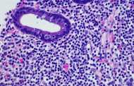 Blood test could rapidly diagnose lymphoma and melanoma