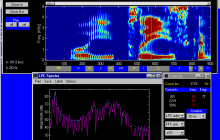 Predicting psychosis in at-risk patients with up to 83 percent accuracy using speech analysis software