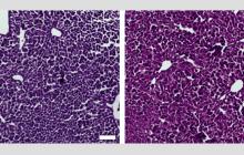 CRISPR/Cas9 silences gene associated with high cholesterol levels