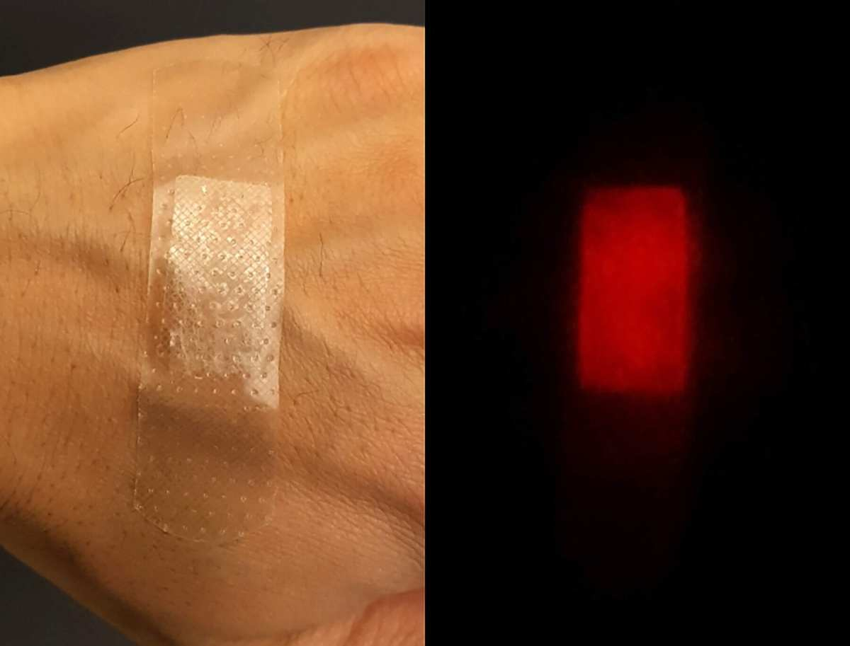 Fluorescent silk as an implantable and injectable wound healing material