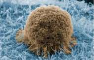 A new type of sensor acts like Velcro® for prostate cancer cells