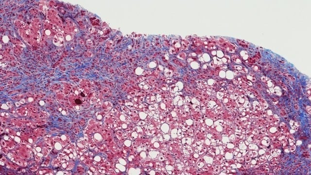 Treating fibrosis, that is estimated to cause 35 to 40 percent of deaths in the world, with precision medicine