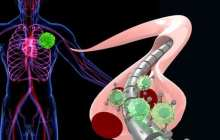 Using a magnetized wire to detect cancer earlier