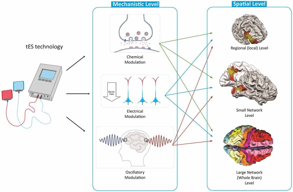 Growing Use Of Electrical Brain Stimulation For Creativity
