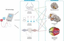 Growing use of electrical brain stimulation for creativity raises big questions