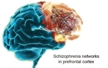 Big breakthrough in schizophrenia research