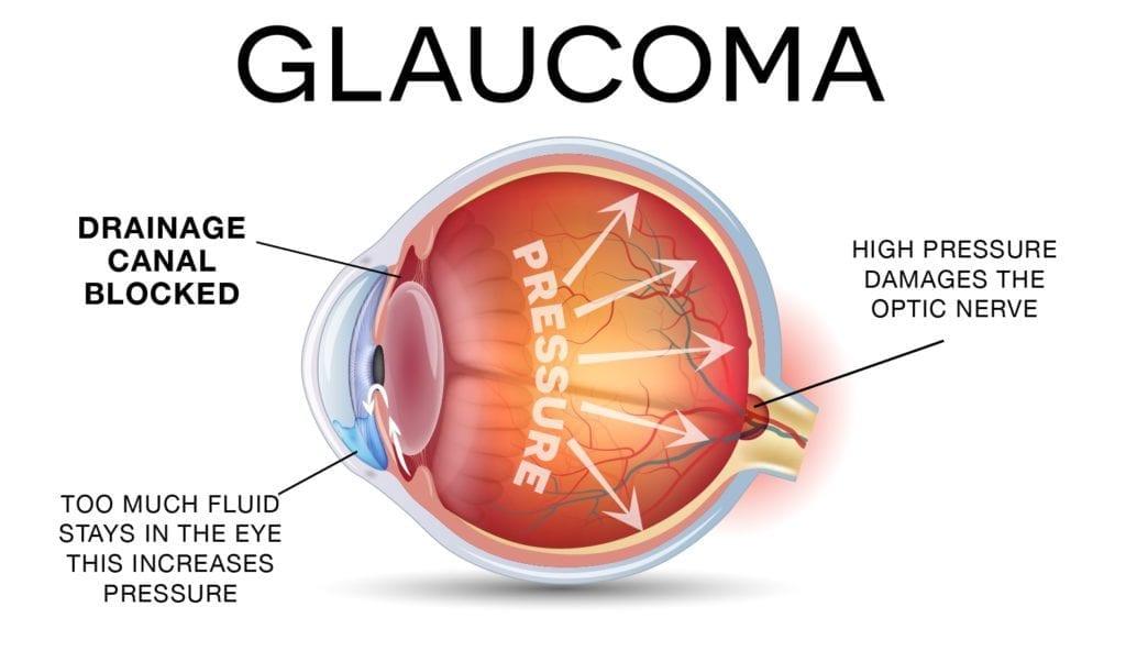 facilitating the early detection of glaucoma innovation toronto Retinal Detachment Diagram