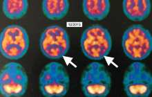First evidence of improvement in brain metabolism in Alzheimer's disease in a patient treated with hyperbaric oxygen therapy