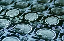 Could risk for psychotic disorders be detected by neurological brain markers