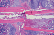 Reversing osteoporosis . . . in mice