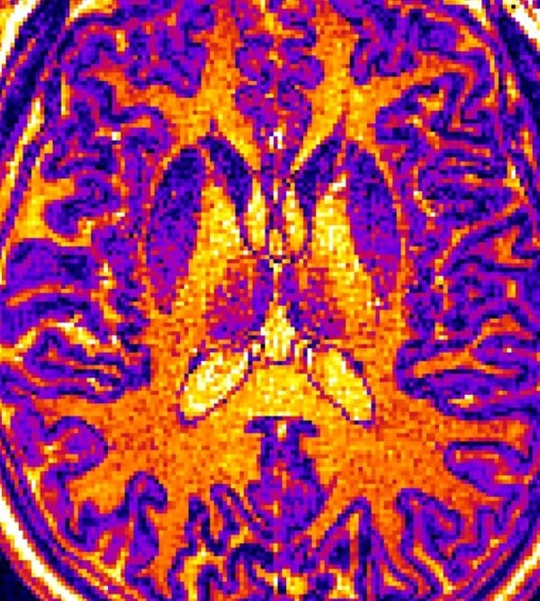MRI images like this one were screened by a machine learning computer algorithm. The algorithm learned to identify the brains of nonpatients, patients diagnosed with autism, and patients diagnosed with schizophrenia based on subtle but statistically important differences in the thickness, volume, or surface area of certain regions of the brain. This tool may help make future mental health diagnosis more objective rather than relying solely on statements from patients and their families. Credit: Shinsuke Koike, CC-BY