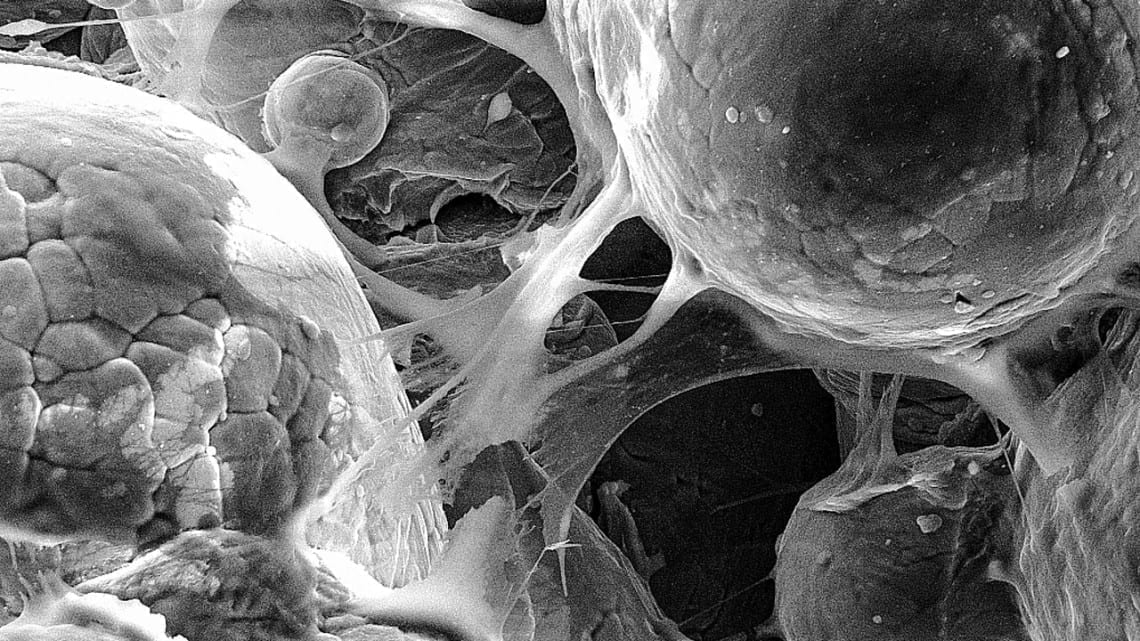 This image shows cells adhering to a titanium alloy created by cold-spray 3D printing, which demonstrates the material's biocompatibility.