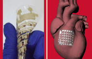 Monitoring and treating heart disease with a new flexible implanted device