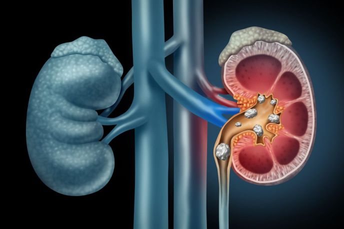 Cornerstone Insurance: Kidney stones, how they form, what to do (image)