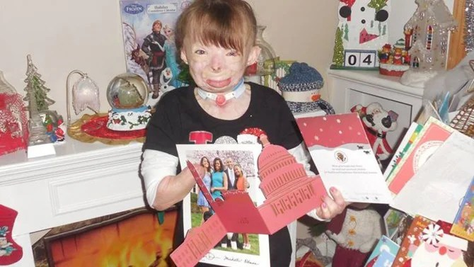 8 Year Old Girl Burned In Arson Fire Gets Christmas Card