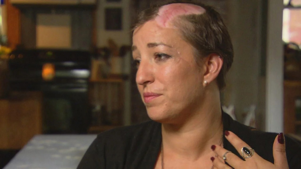 Mother Recounts Scalping Ordeal After She Leaned Over Car