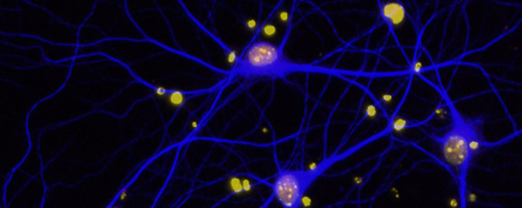 Image of synapses.