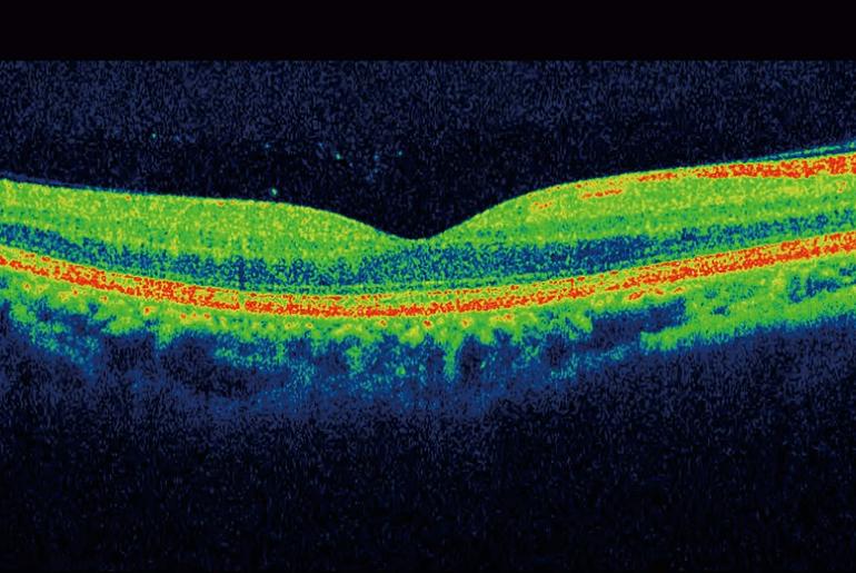 OCT scan of a retina